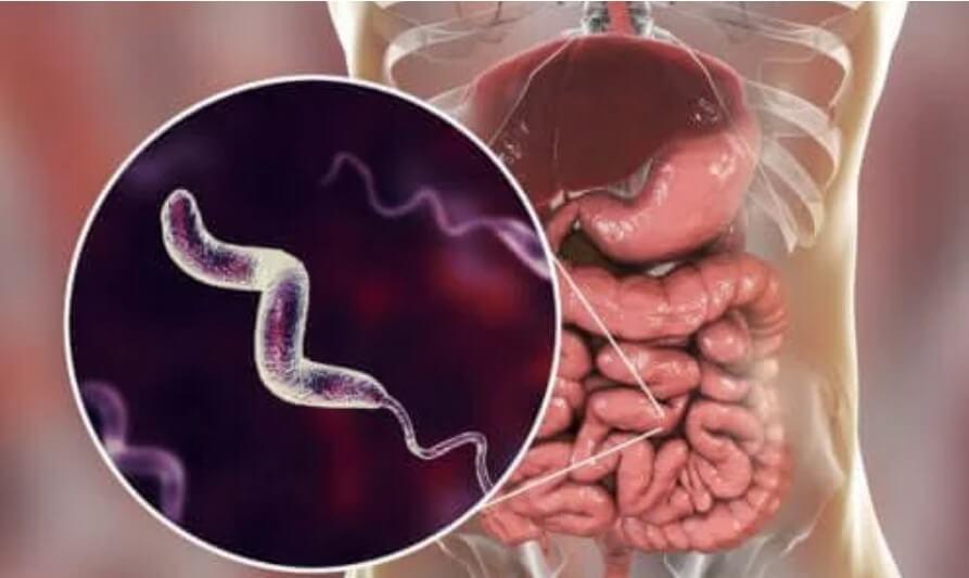 Μολύνσεις από καμπυλοβακτηρίδιο: Χαρακτηριστικά και αιτίες