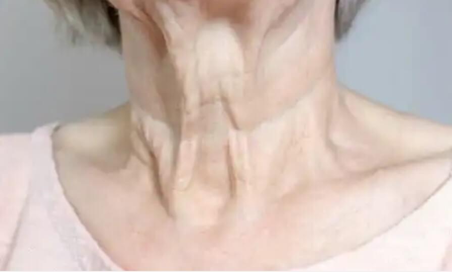 ρυτίδες λαιμού