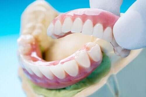 Οδοντική γέφυρα: Τύποι, οφέλη, και μειονεκτήματα