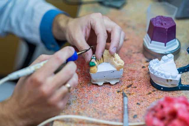 Οδοντοτεχνίτης φτιάχνει οδοντική γέφυρα