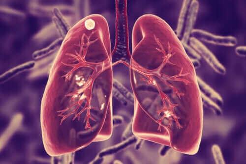 Τι είναι η πνευμονική φυματίωση και ποια τα συμπτώματά της;