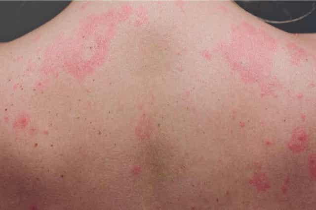 Άτομο με εξανθήματα στο δέρμα