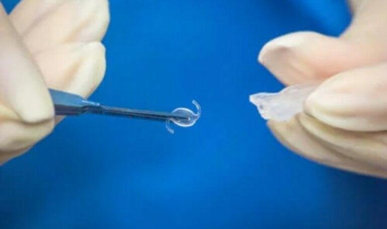 Εγχείρηση ενδοφθάλμιου φακού: Πότε είναι απαραίτητη;