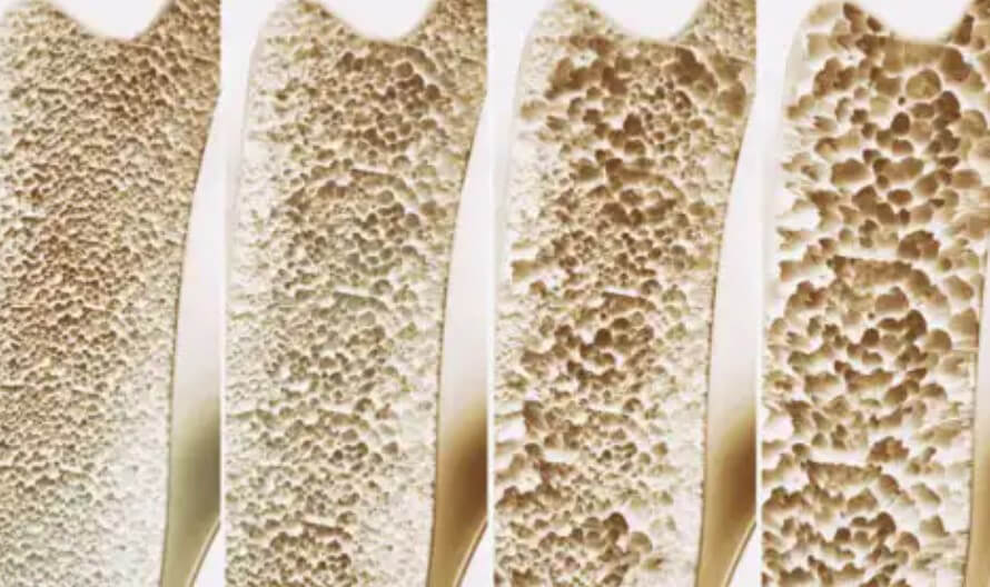 πυκνότητα οστών