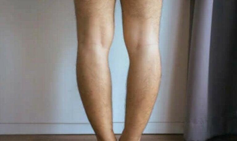 Genu Varum ή αλλιώς στραβά πόδια: Αιτίες και θεραπεία