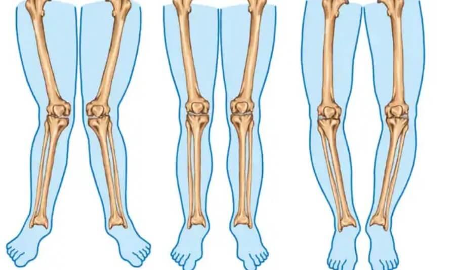 απεικόιση για στραβά πόδια