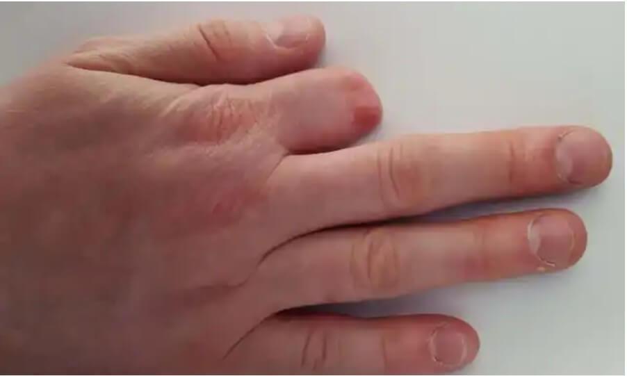 ακρωτηριασμένο δάκτυλο