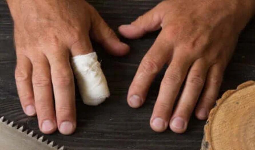 Πρώτες βοήθειες για τον τυχαίο ακρωτηριασμό των δακτύλων