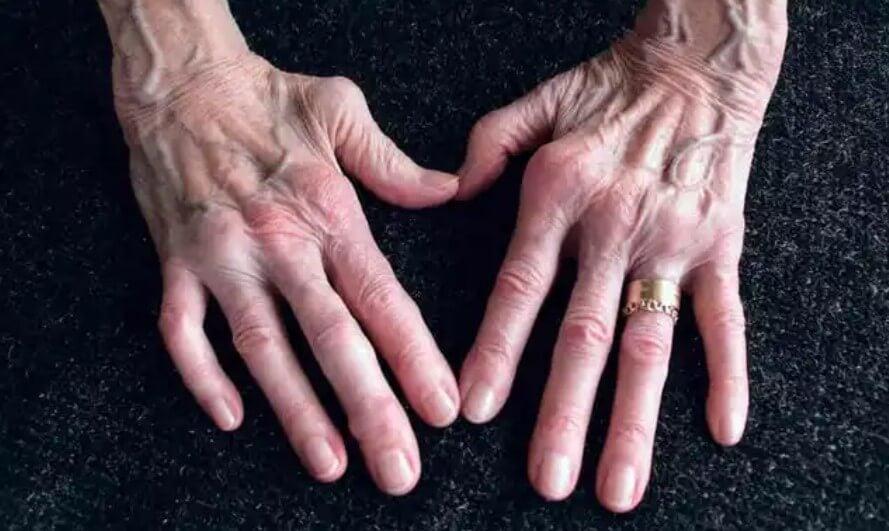 χέρια με αρθρίτιδα