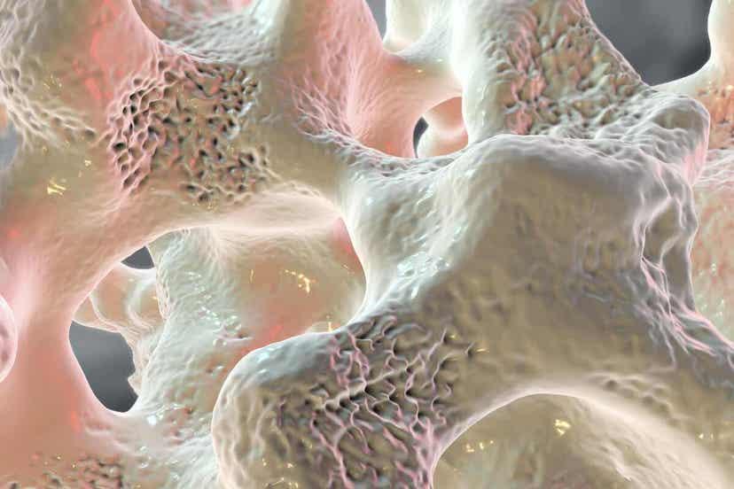Απεικόνιση οστού με οστεοπόρωση