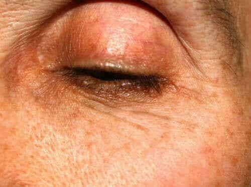 Δυσλειτουργία των μεϊβομιανών αδένων: Τα χαρακτηριστικά της