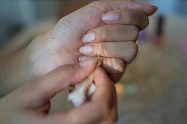 Γυναίκα αφαιρεί το βερνίκι νυχιών