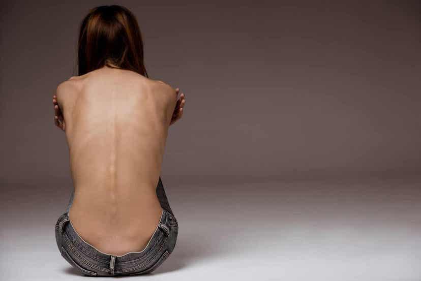 Γυναίκα με ανορεξία