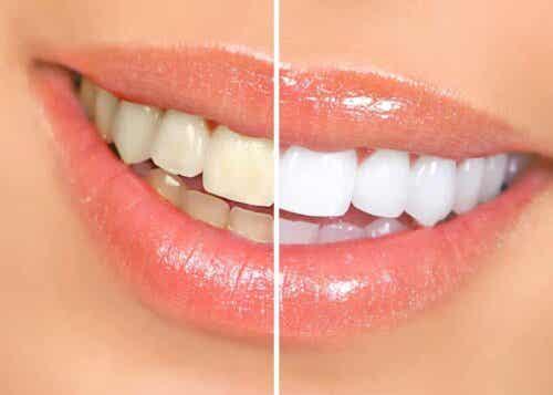 Σύγκριση κίτρινων και λευκών δοντιών