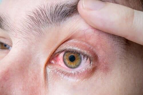 Οφθαλμικό μελάνωμα: συμπτώματα και αιτίες
