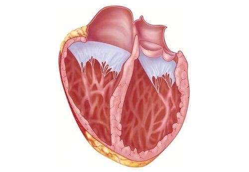 Τι πρέπει να γνωρίζετε για μια διασταλμένη καρδιά